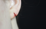 Special Effects Torn Earlobe